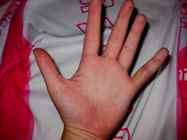 pijn vingergewricht